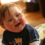 Pilihan Jenis Terapi Bagi Anak Down Syndrome