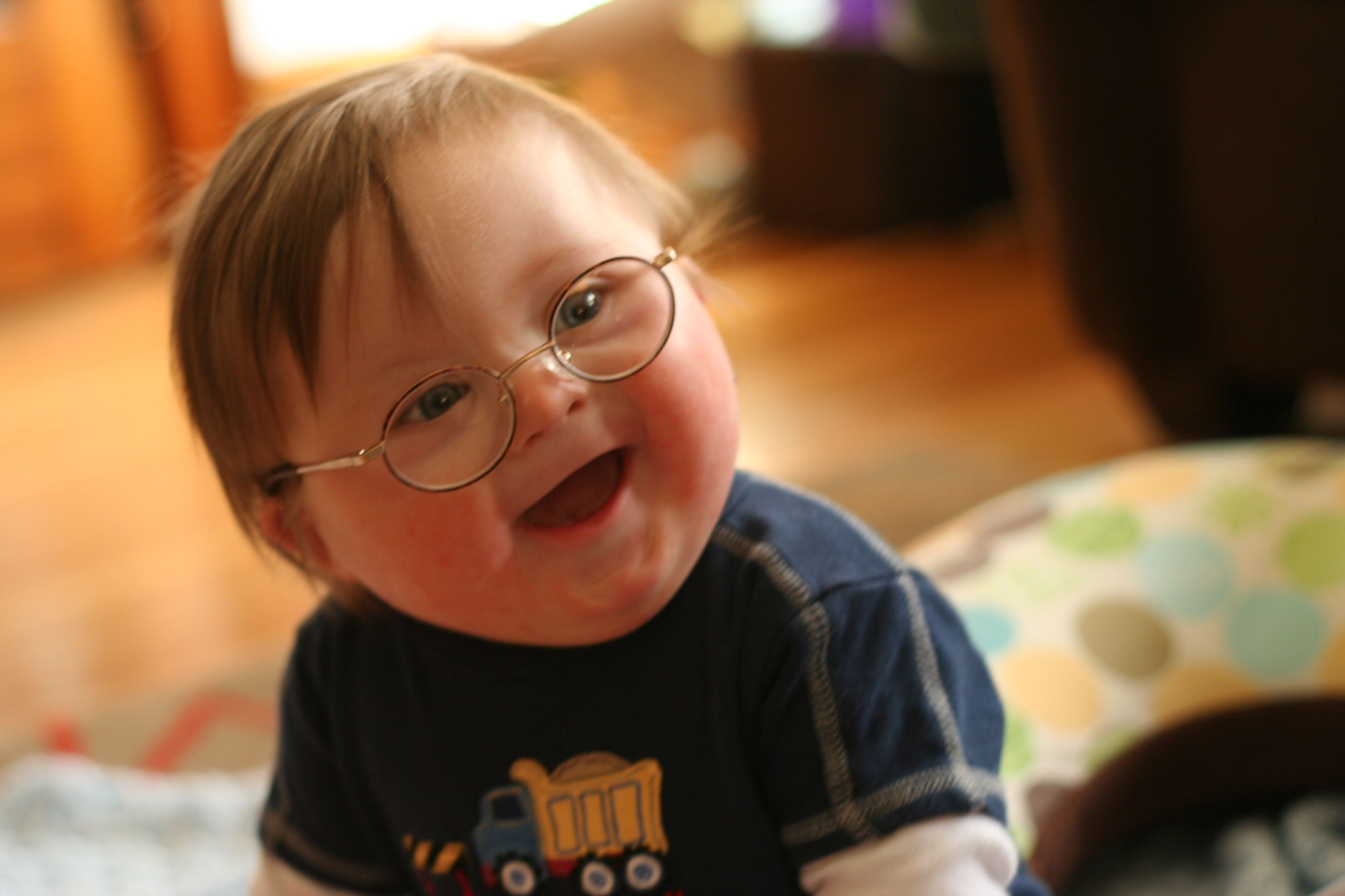 Terapi Anak Down Syndrome